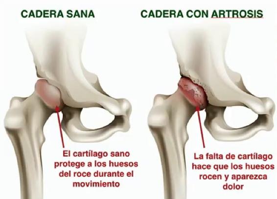 Cadera con Artrosis. Guía práctica para pacientes con Prótesis Total de Cadera IMTRA