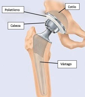 Componentes de una prótesis total de cadera. Guía práctica para pacientes con Prótesis Total de Cadera IMTRA